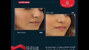 تزریق ژل | تزریق ژل لب | فیلم تزریق ژل لب | کلینیک پوست و مو رز | شماره ۲