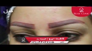 کاشت ابرو   فیلم کاشت ابرو   کلینیک پوست و مو رز   شماره ۲۷