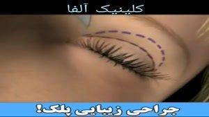 جراحی زیبایی پلک (کلینیک آلفا )