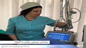 جراحی لابیاپلاستی با آنجلا