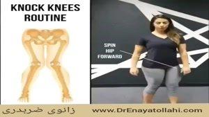 ورزش هایی برای زانوی ضربدری