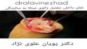 نمای داخلی مفصل زانوی ساییده شده
