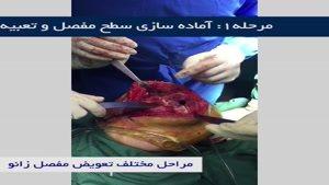 جراحی تعویض مفصل زانو