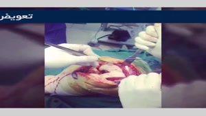 تعویض مفصل زانو