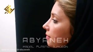 نمونه جراحی بینی (دکتر ابیانه)