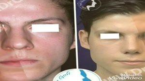 نمونه جراحی بینی ۳