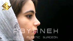نمونه جراحی بینی ۳ (دکتر ابیانه )