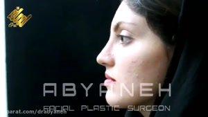 نمونه جراحی بینی ۴ ( دکتر ابیانه )