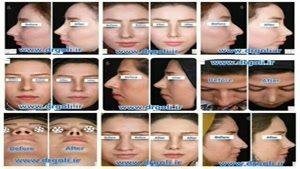 نمونه جراحی بینی ۵