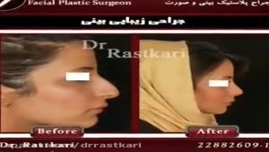 نمونه جراحی زیبایی بینی خانم ها