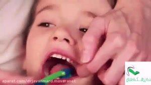 راه های مراقبت از دندان کودکان