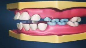 تاثیر مکیدن انگشت بر سلامت دهان و دندان کودک