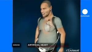 قلب مصنوعی ۵ساله