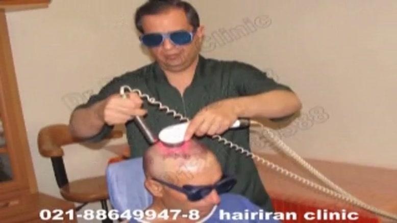 کاشت مو با لیزر