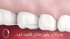 نخ دندان کشیدن صحیح
