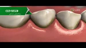 بیماریهای شایع دهان و دندان