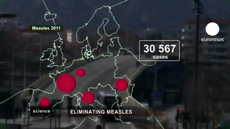 افزایش شیوع سرخک در اروپا