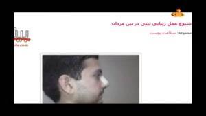 مستند عمل زیبایی بینی در ایران