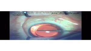 عمل جراحی تغییر رنگ چشم
