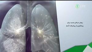 پیشگیری از پیشرفت بیماری آسم