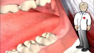 چگونه دندان عقل برداشته می شود...