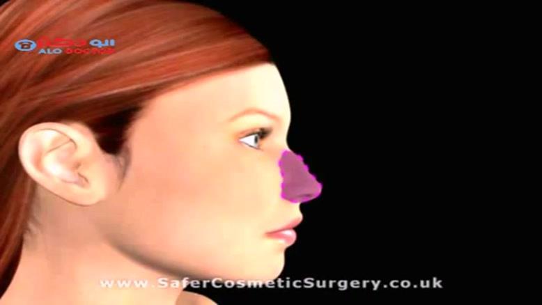 جراحی بینی باز...