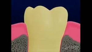 دشمن دندان ها