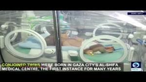 تولد نوزاد دو سر در نواز غزه