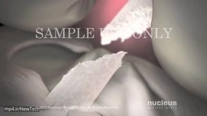 فناوری علمی جدید جراحی زانو