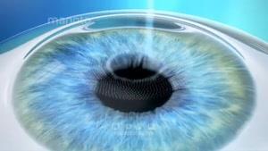 تک شو-تاثیر تکنولوژی بر بینایی