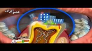 درباره پوسیدگی دندان چه میدانیم؟