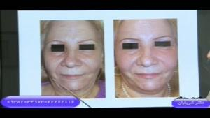 توضیحاتی در مورد جراحی زیبایی صورت