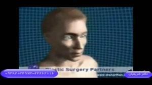 جراحی زیبایی بینی یا رینو پلاستی