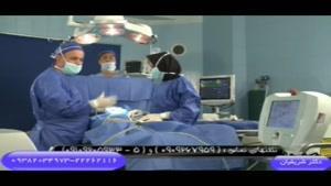 توضیحاتی در مورد عمل لیپولیز توسط دکتر شریفیان