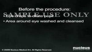 عمل جراحی آب مروارید