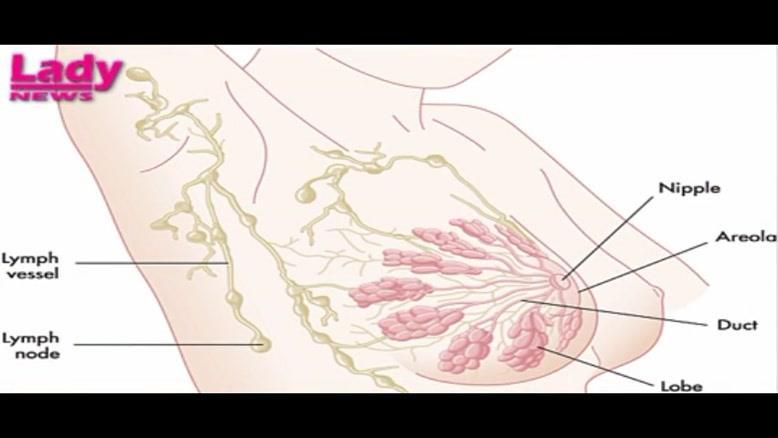 سرطان های شایع در زنان