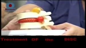 دیسک کمر و درمان آن