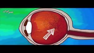 می دانید لکه های شفاف شناور جلوی چشمانتان چیست؟