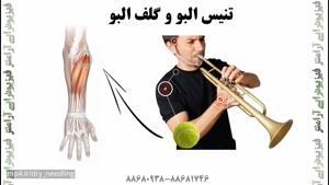 بررسی دردهای مچ دست و آرنج نوازندگان توسط فیزیوتراپیست صادق زراعتکار