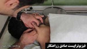 درمان میگرن با سوزن درمانی در فیزیوتراپی آرامش سعادت آباد