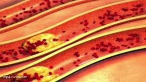 با این چند کار ساده چربی خون خود را به شدت کاهش دهید