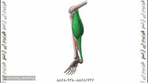 طب سوزنی دردهای پشت ساق توسط فیزیوتراپیست صادق زراعتکار