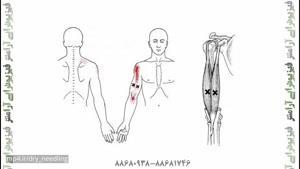 درمان دردهای بازوی نوازندگان با طب سوزنی