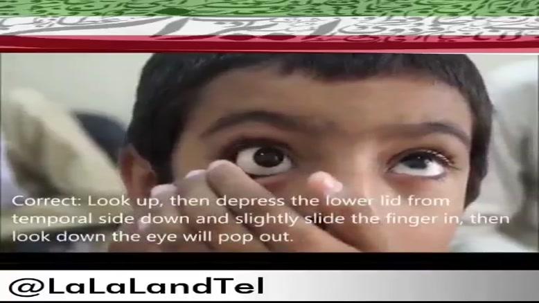 پزشک ایرانی که چشم مصنوعی با قابلیت دید اختراع کرده