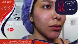 تزریق چربی | فیلم تزریق چربی | کلینیک پوست و مو رز | شماره ۱۰