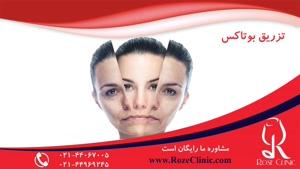 تزریق بوتاکس | فیلم تزریق بوتاکس | کلینیک پوست و مو رز |۸