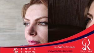تزریق چربی | فیلم تزریق چربی | کلینیک پوست و مو رز | شماره۱۵