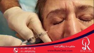 تزریق بوتاکس | فیلم تزریق بوتاکس | کلینیک پوست و مو رز |۹
