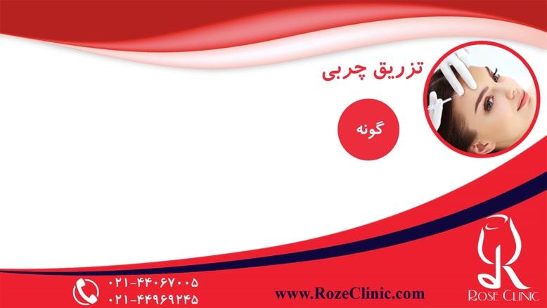 تزریق چربی | فیلم تزریق چربی | کلینیک پوست و مو رز | شماره۱۳