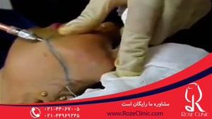 تزریق چربی | فیلم تزریق چربی | کلینیک پوست و مو رز | شماره۱۲